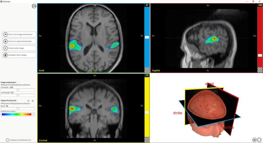 Capture d'écran d'EduAnat2 montrant une IRMf associée à l'audition d'un son