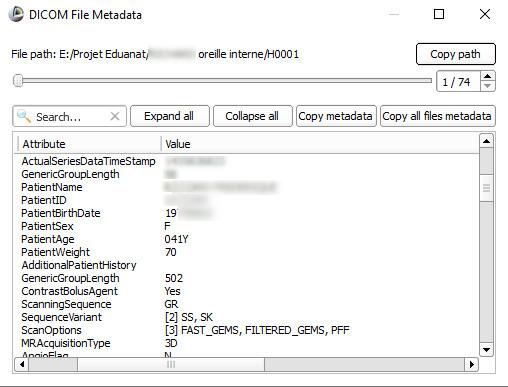 """Capture d'écran de la fenêtre """"Metadata"""" du logiciel Slicer"""