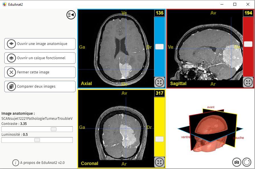 Capture d'écran du logiciel EduAnat2 montrant une tumeur située dans le lobe occipital